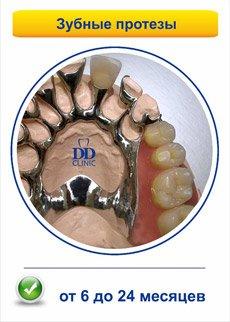 гарантии-забные-протезы