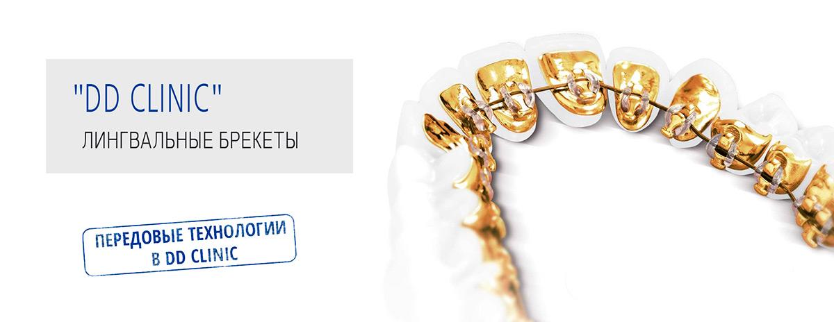 Выравнивание зубов в киеве